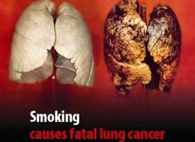 РЗИ Пазарджик приканва 19 ноември да бъде Ден без тютюнев дим