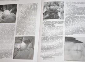 """Хирурзите на МБАЛ """"Здраве"""" – Велинград с признание в национален мащаб"""