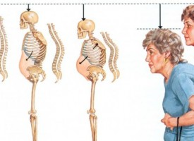 Измервания на костна плътност по повод 20 октомври: Световен ден за борба с остеопорозата