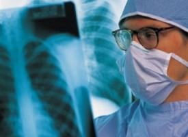 Безплатни прегледи за туберкулоза до 22 март, ето къде
