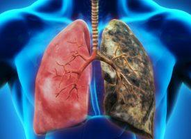 Здраве: Цигарите са най-честата причина за Хронична обструктивна белодробна болест
