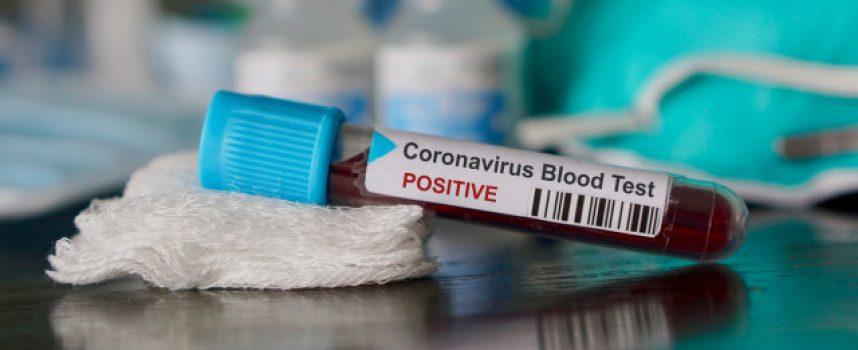 Шест са новите положителни за коронавирус