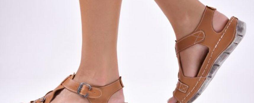 Пет женски неприятности през лятото и как да се справим с тях